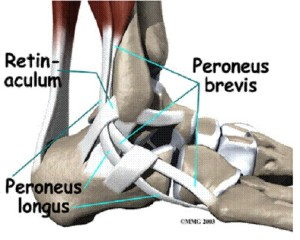 Back in the Boot-Peroneal Tendon Subluxation